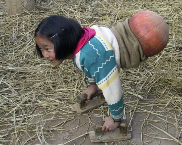 """En esta foto podemos ver cómo Qian Hongyan, """"la chica baloncesto"""" de China, se ayuda de sus manos para poder caminar, completando su cuerpo con un balón de baloncesto"""