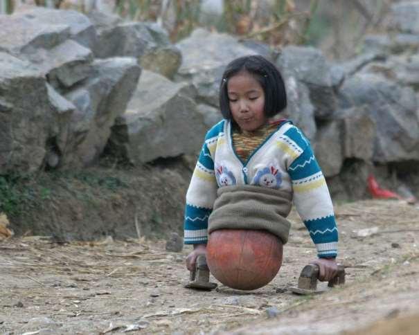 """En esta foto podemos ver cómo Qian Hongyan, """"la chica baloncesto"""" de China, se ayuda de sus manos, y de un balón de baloncesto, para poder caminar"""